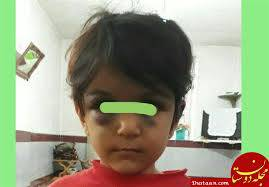 تحقیق کودک آزاری