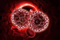 تحقیق سرطان خون (لوسمی) چیست؟
